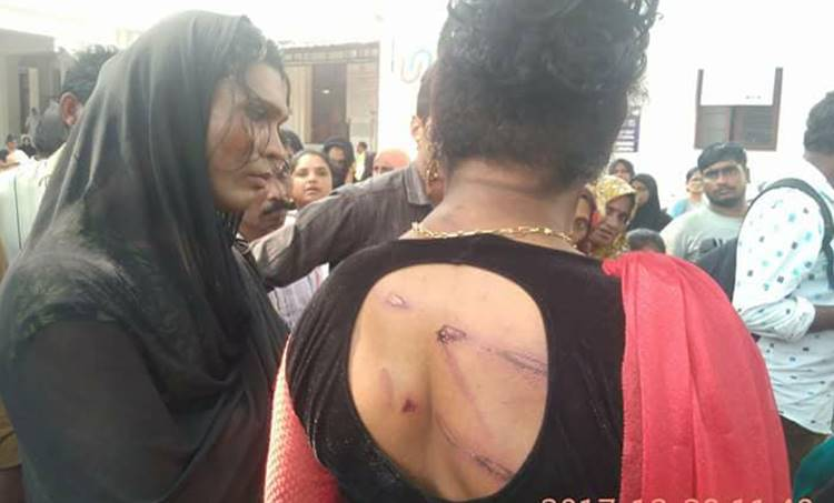 Kozhikode, Kochi, Transgenders, transgender attacked issue, police case, kozhikode SI, inquiry against police