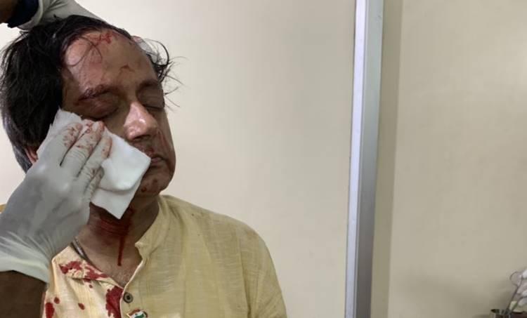 dr shashi tharoor injured, Shashi Tharoor, ശശി തരൂര് Lok Sabha Election 2019, ലോക്സഭാ തിരഞ്ഞെടുപ്പ് 2019 Injured, പരുക്ക്, Lok Sabha Election 2019, ലോക്സഭാ തിരഞ്ഞെടുപ്പ് 2019 Shashi Tharoor, ശശി തരൂര് Trivandrum, തിരുവനന്തപുരം, Tweet, ട്വീറ്റ്