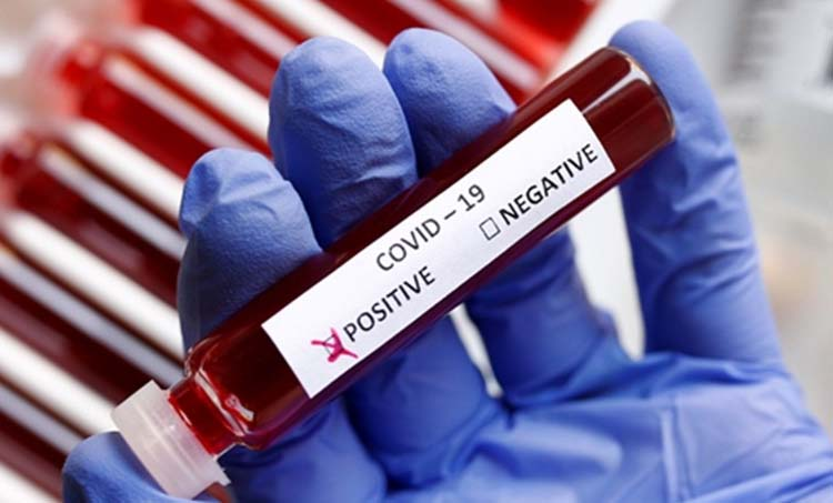 coronavirus, ICMR scientist tests positive, coronavirus tests in india, coronavirus pandemic, coronavirus testing centres, icmr, icmr on coronavirus testing, cornavirus test kits, coronavirus india cases