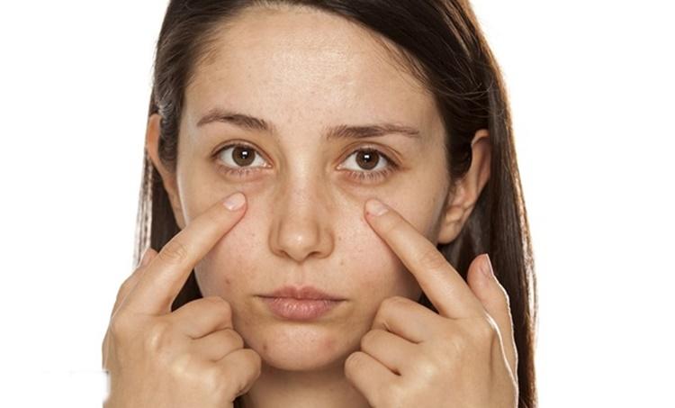 eye bags, under eye circle, beauty tips, remedies, expert tips, natural remedies, nuska, face pack, potato for skin, skincare benefits, കൺത്തടങ്ങളിലെ കറുപ്പ് അകറ്റാം
